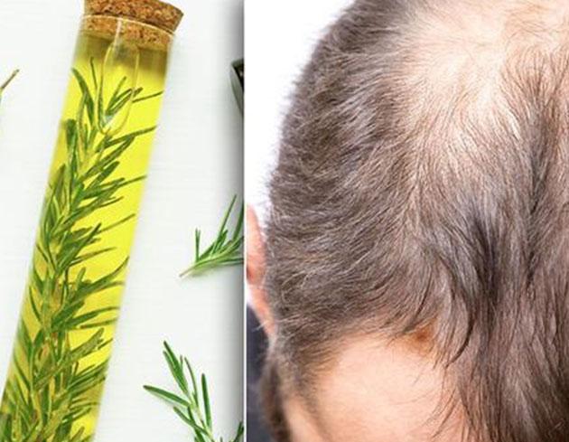 رشد مجدد مو با گیاه رزماری - گیاه رزماری و ریزش مو