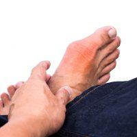درمان نقرس در طب سنتی