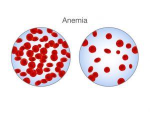 توزیع گلبولهای قرمز در فرد مبتلا به آنمی و فرد سالم - درمان کم خونی در طب سنتی